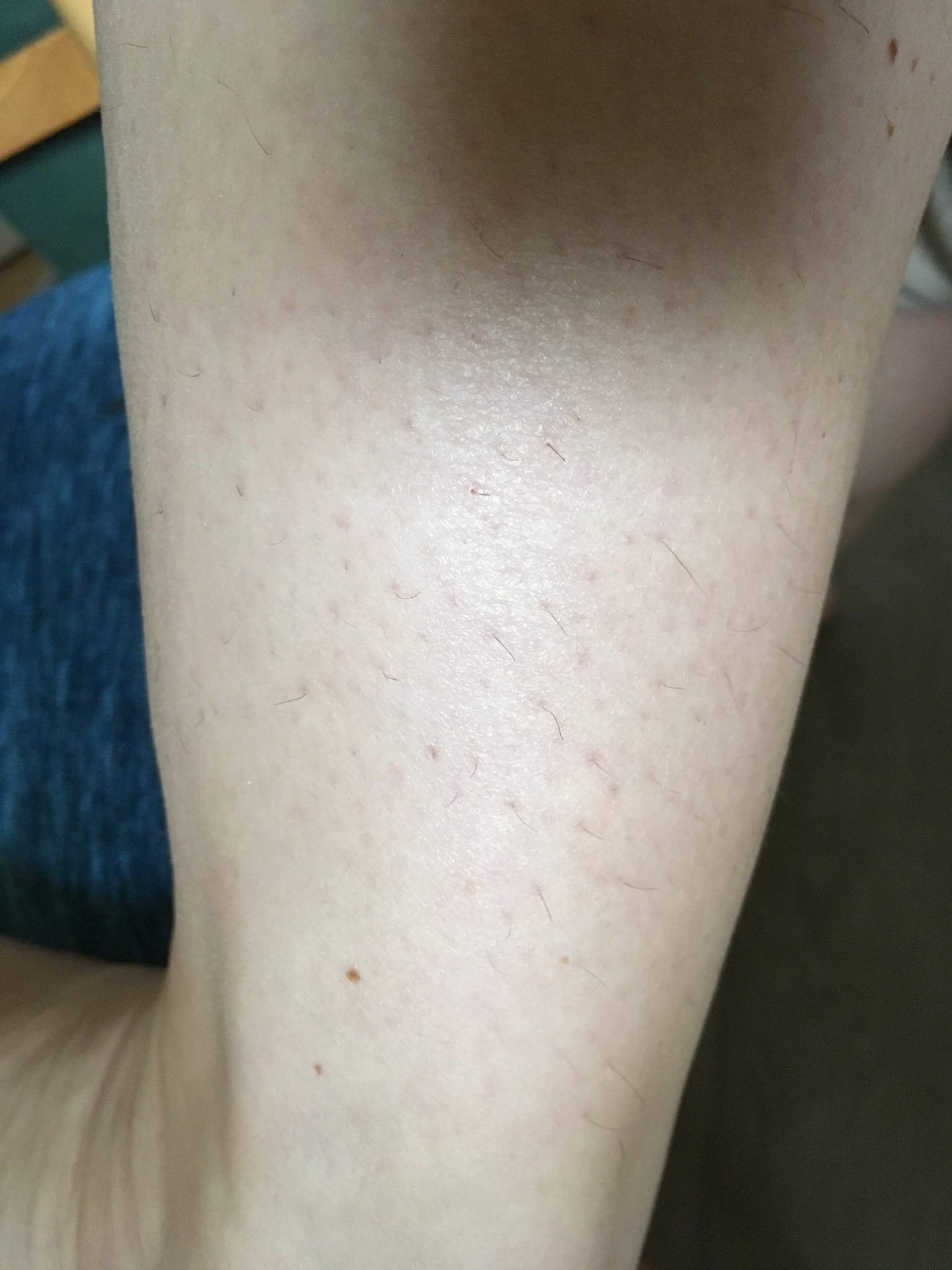 cukrová-pasta-depilace